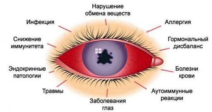 Что делать при воспалении глаз