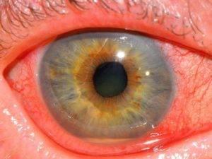 Заболевания сосудистой оболочки глаза. диагностика и лечение