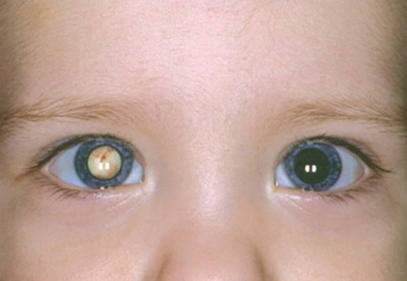 Врожденная катаракта у детей: почему возникает и как распознать патологию у новорожденного ребенка, лечим заболевание правильно