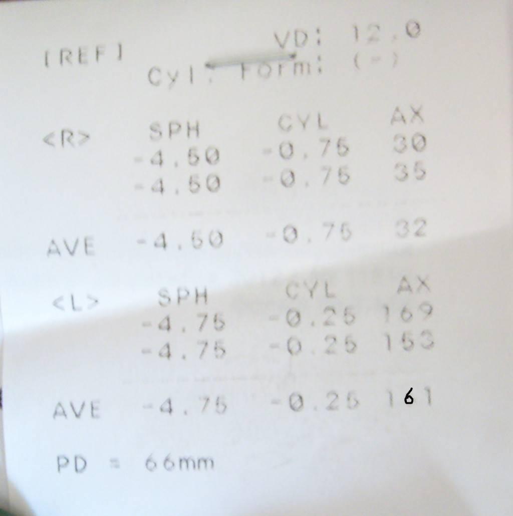 Кератометрия: что это такое, кератометр в офтальмологии, рефрактометрия расшифровка показателей, кераторефрактометрия глаза, офтальмометрия