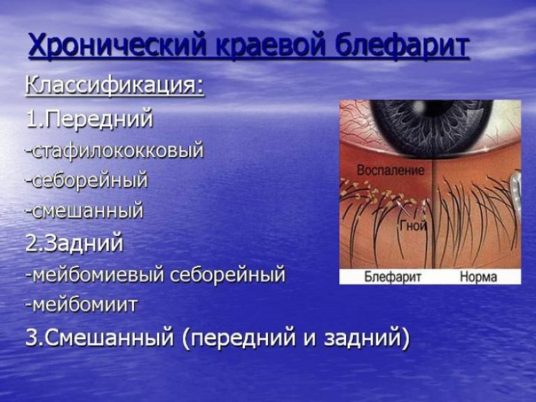 Блефарит - симптомы и лечение