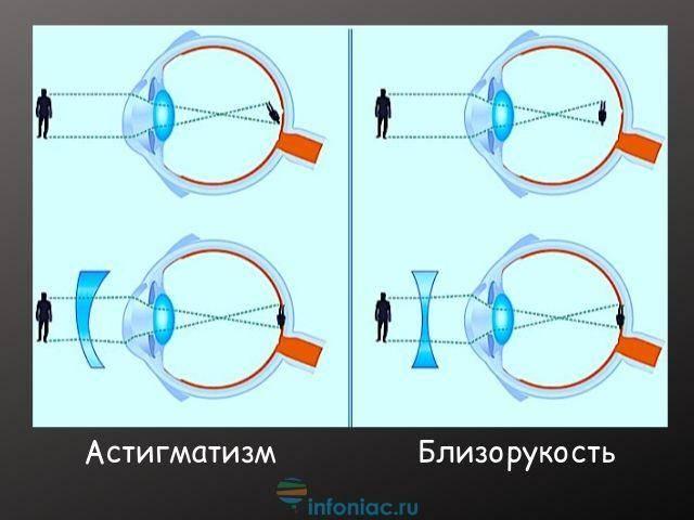 Миопия высокой степени с астигматизмом: причины, симптомы и способы лечения — глаза эксперт