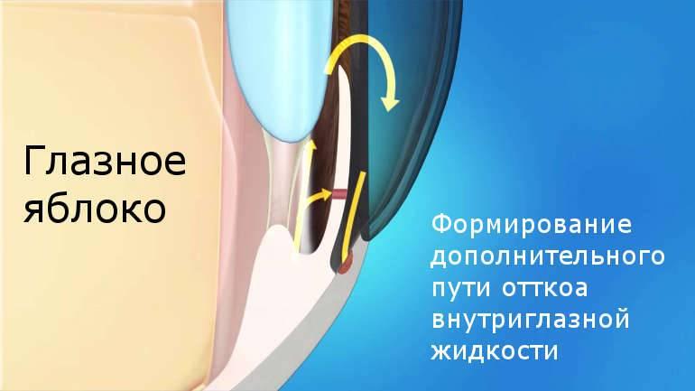 Лазерные операции на глаукоме – иридэктомия и трабекулопластика