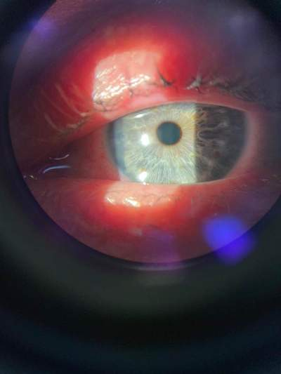 4 эффективных метода, достать линзу, если она закатилась за глаз