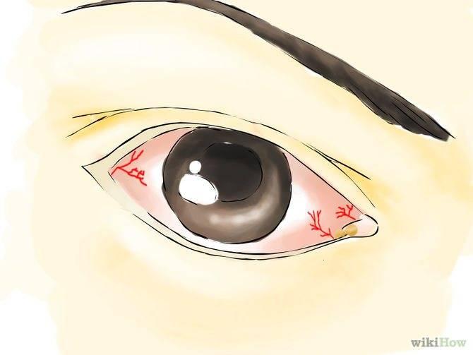 Красные глаза от компьютера — что можно сделать