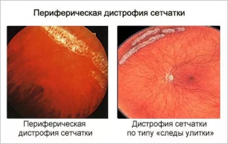 Дистрофия сетчатки глаза: что это такое, как лечить дистрофию глазной сетчатки, фото заболевания