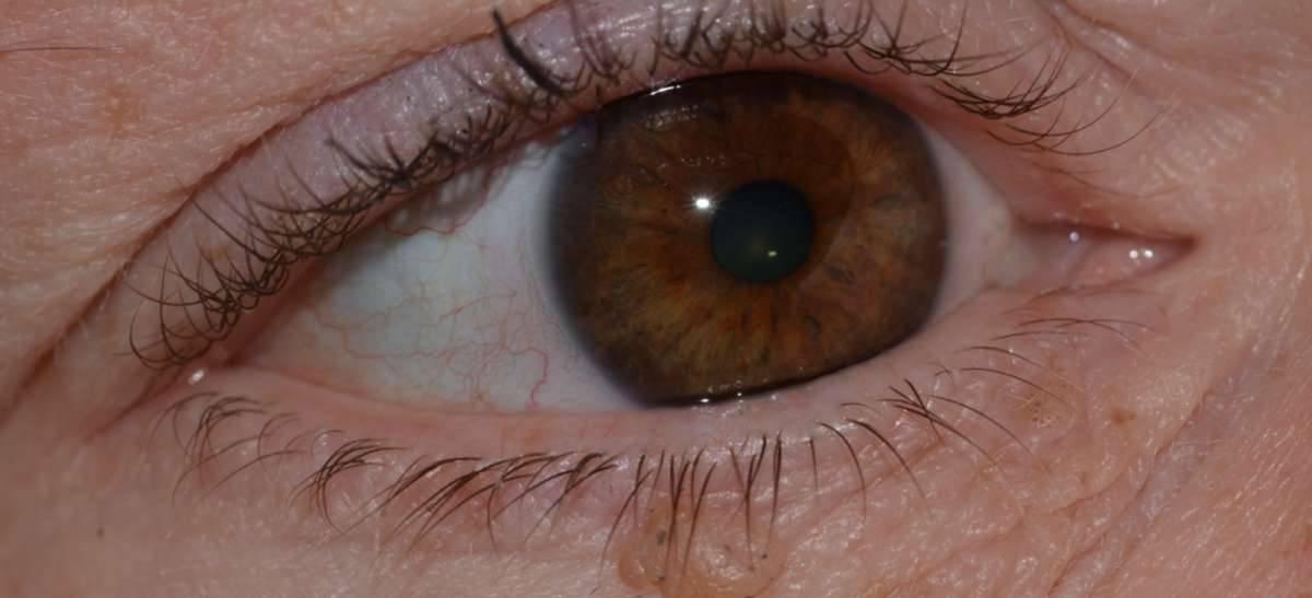 Папиллома на глазу — причины, симптомы и лечение, способы удаления