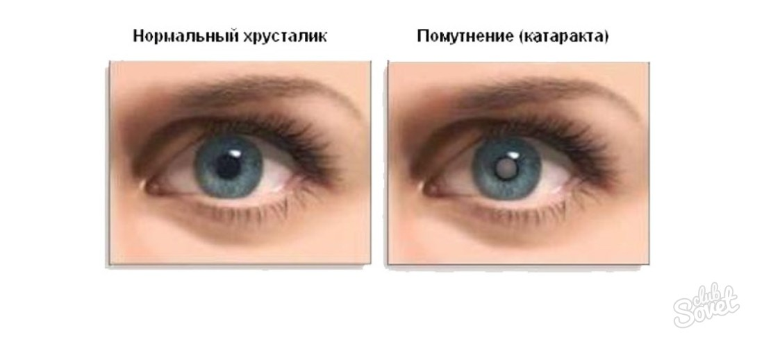 Дальтонизм (цветовая слепота)
