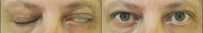 Эндофтальмит глаза: симптомы, лечение, причины, осложнения и профилактика