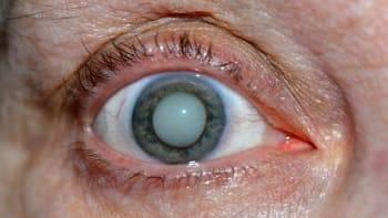Осложнения после удаления катаракты с заменой хрусталика: причины нежелательных реаций, как проявляется отек роговицы и отслоение сетчатки, что делать, если после операции образавалась пленка