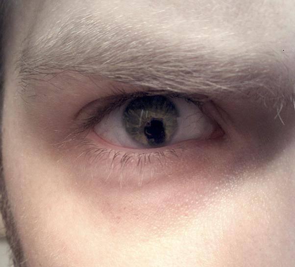 Анизокория: причины, симптомы и лечение заболевания глаз