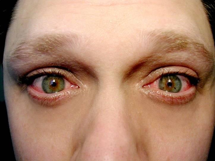 Блефароконъюнктивит глаз и его лечение: что это такое, симптомы, причины, виды (хронический, демодекозный, грибковый, аллергический), диагностика, профилактика, народные средства