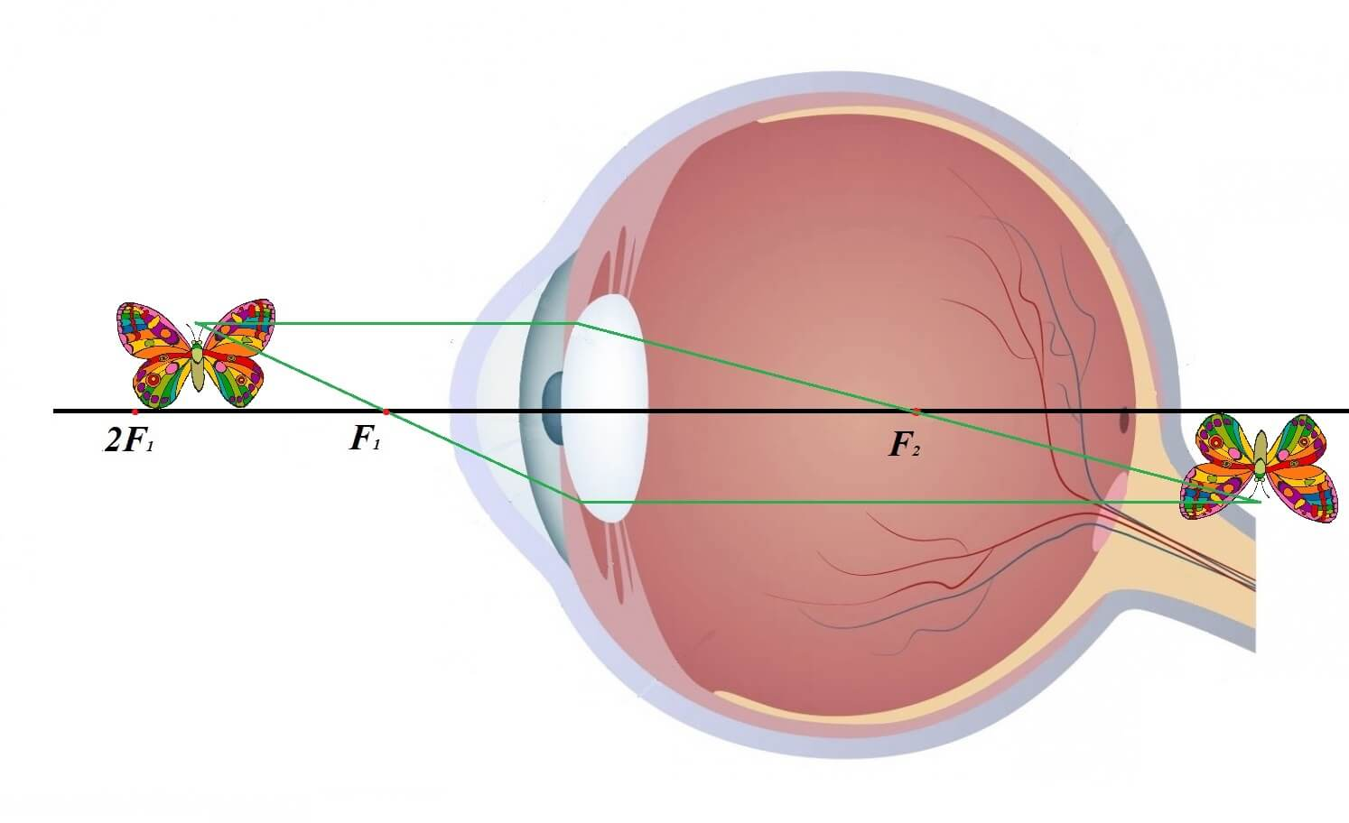 Мутное зрение в одном глазу