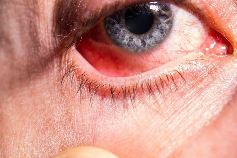Вся правда о воспалении глаз и век