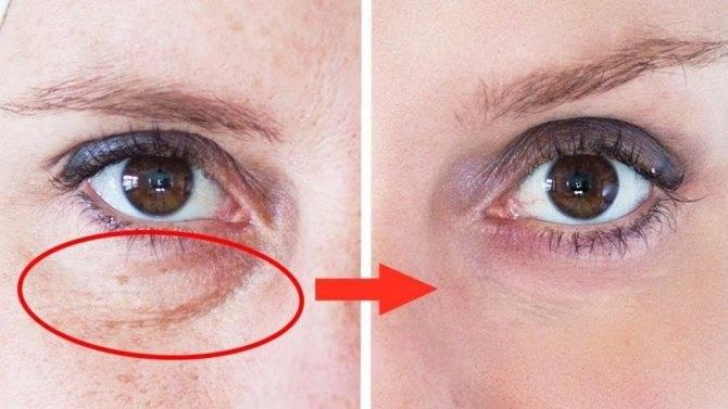 Петрушка для глаз: от синяков, кругов, мешков