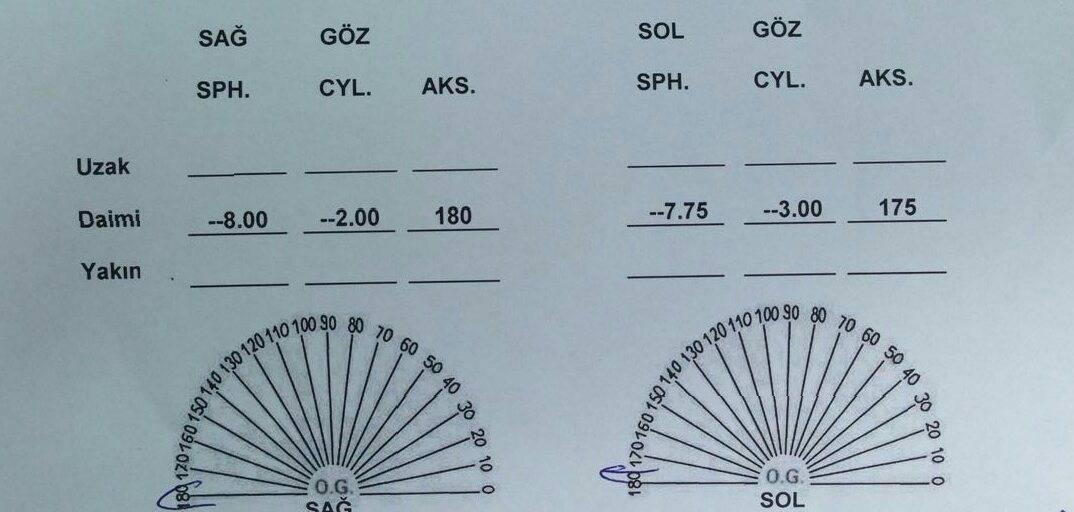 Пересчет цилиндров при астигматизме: принципы очковой коррекции — глаза эксперт