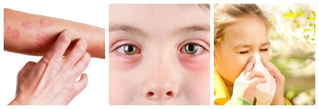 Детская аллергия у ребенка (80 фото) - причины, симптомы и лечение аллергии