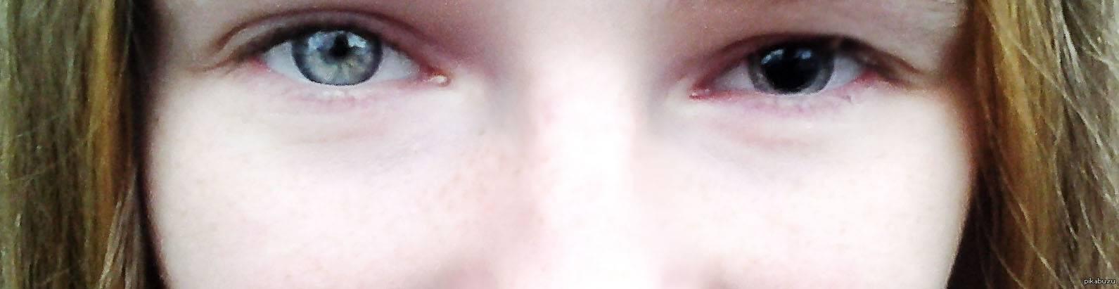 Почему темнеет в глазах, когда встаю: причины потемнения и головокружения, какие лекарства пить