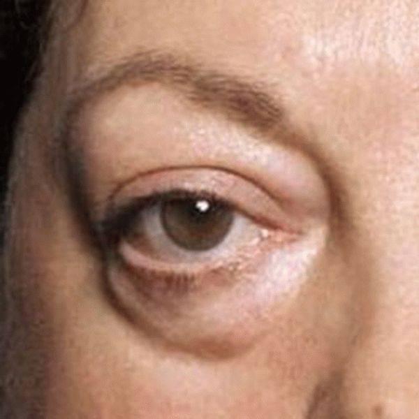Почему возникают красные точки под глазами, как от них избавиться?