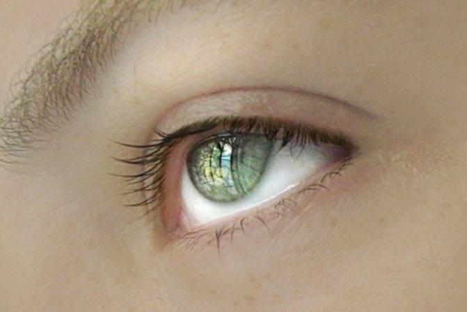 Царапина на роговице глаза. клиники. консультация офтальмолога.