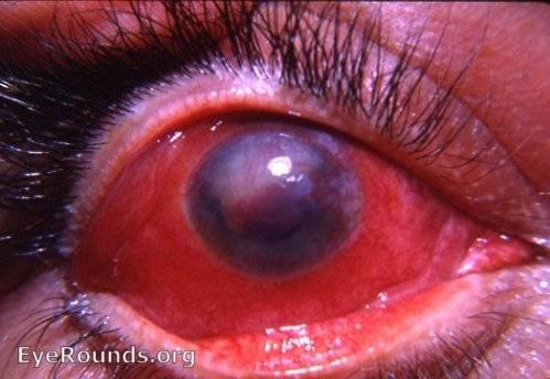Симпатическая офтальмия - что это, симптомы, причины и лечение