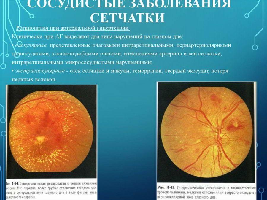3 способа лечения макулярного отека сетчатки глаза, которые помогут избежать осложнений