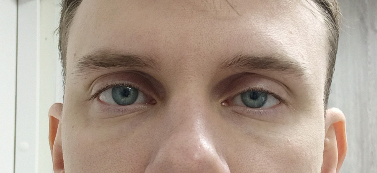 """У ребенка один глаз больше другого: причины - """"здоровое око"""""""