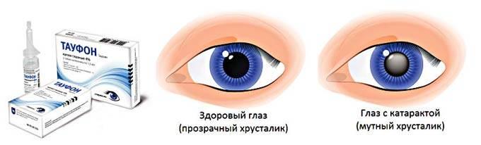 Глазные капли тауфон — польза и вред
