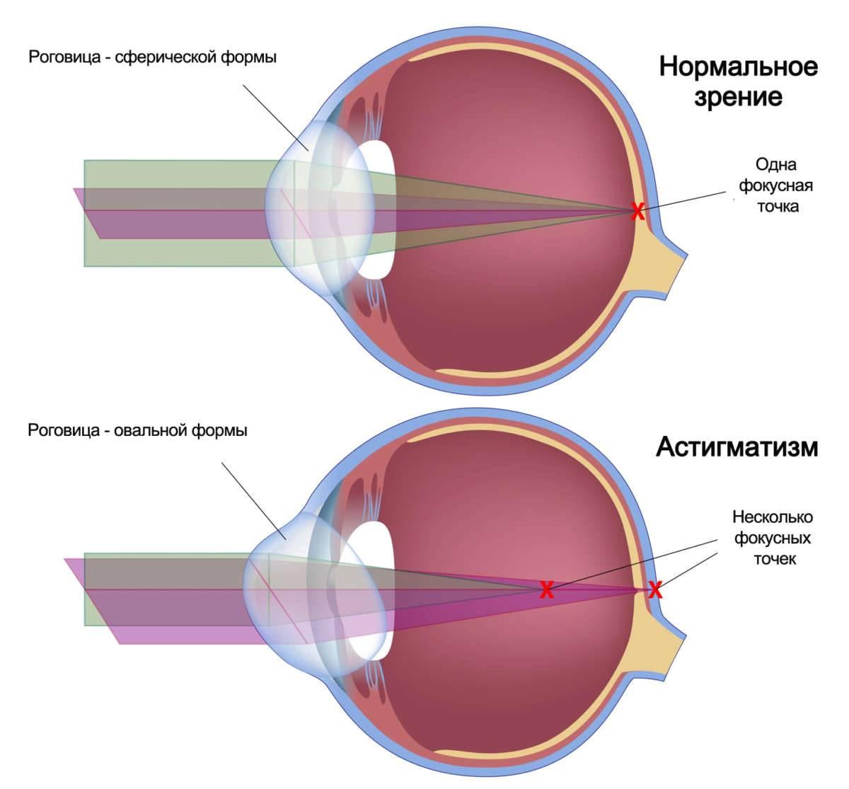Астигматизм - причины, симптомы, диагностика и лечение астигматизма глаз | ао «медицина» (клиника академика ройтберга)