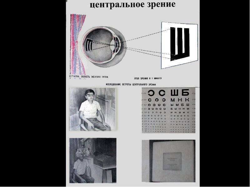 Центральное зрение: острота центрального зрения, единицы измерения. принципы устройства таблиц для исследования остроты зрения. методы определения остроты зрения — офтальмология