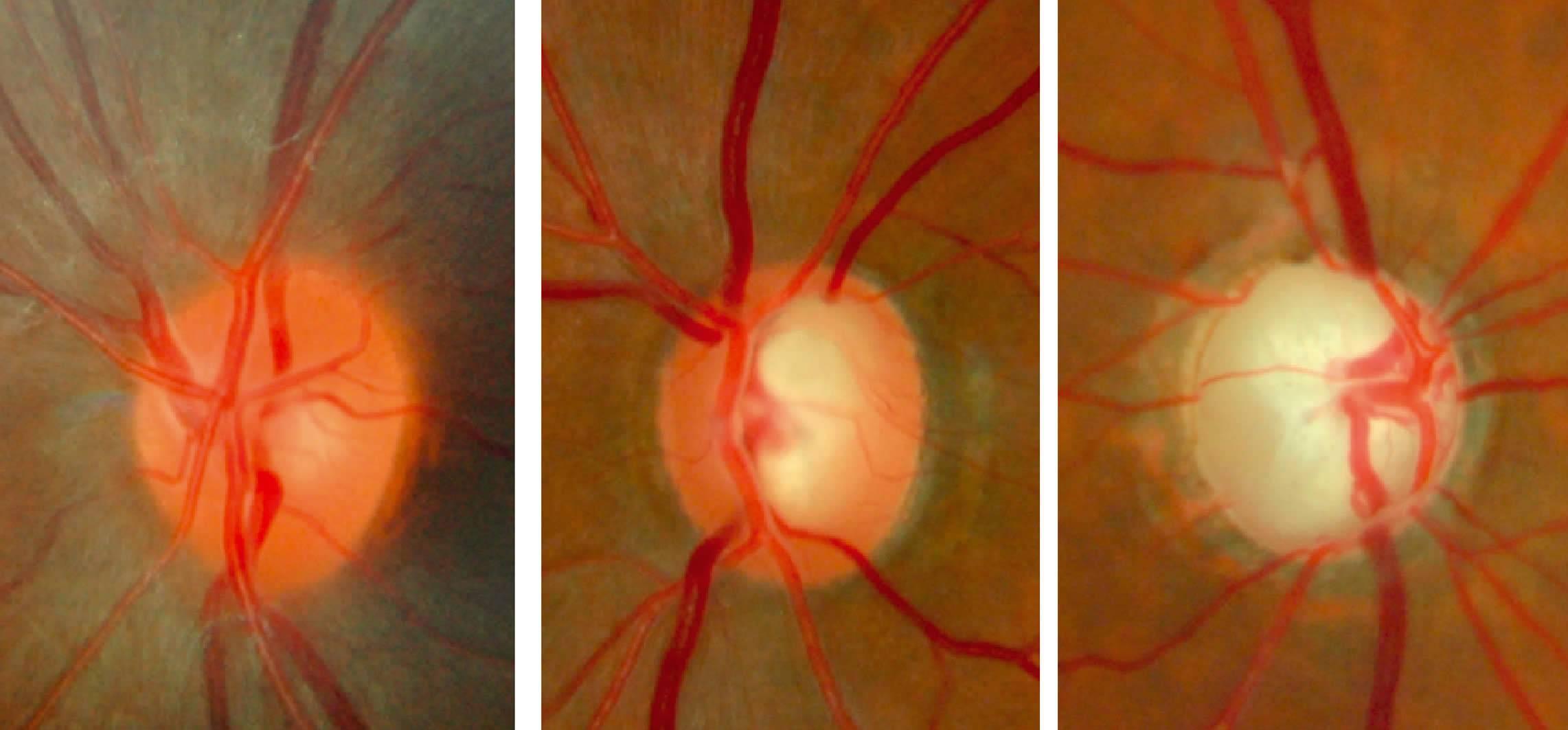 Атрофия зрительного нерва — лечение и прогноз