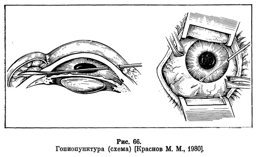 Лазерная иридотомия (иридэктомия) при глаукоме