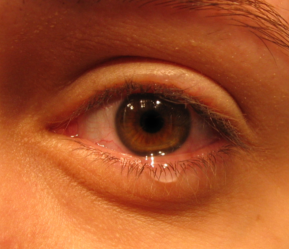 Причины и лечение слезоточивости одного глаза
