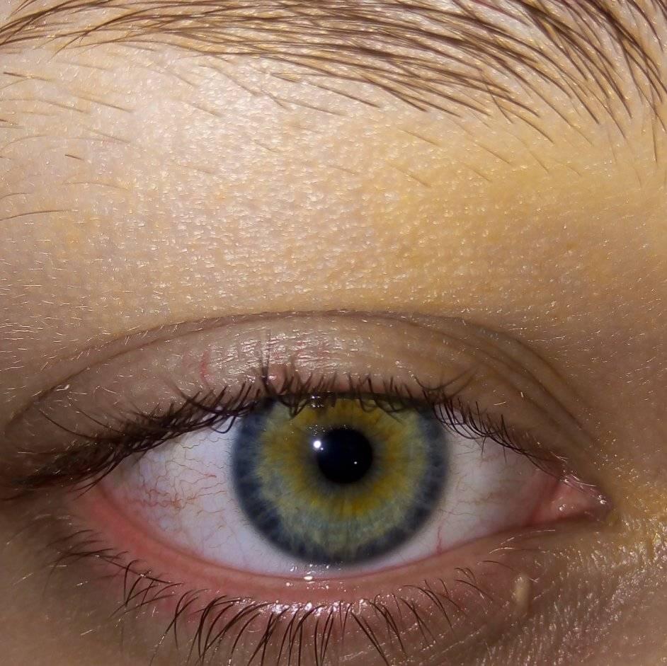 На глазу появилось желтое пятно — что это? желтые пятна на белке глаза