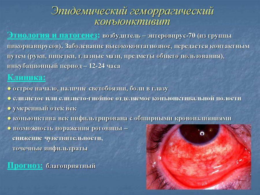 Конъюнктивит. симптомы, причины и лечение