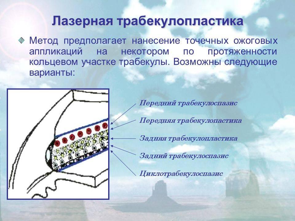 Селективная лазерная трабекулопластика (слт) при глаукоме - цены и отзывы об операции