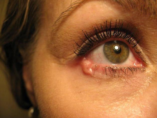 Рак глаза: первые симптомы, причины, лечение