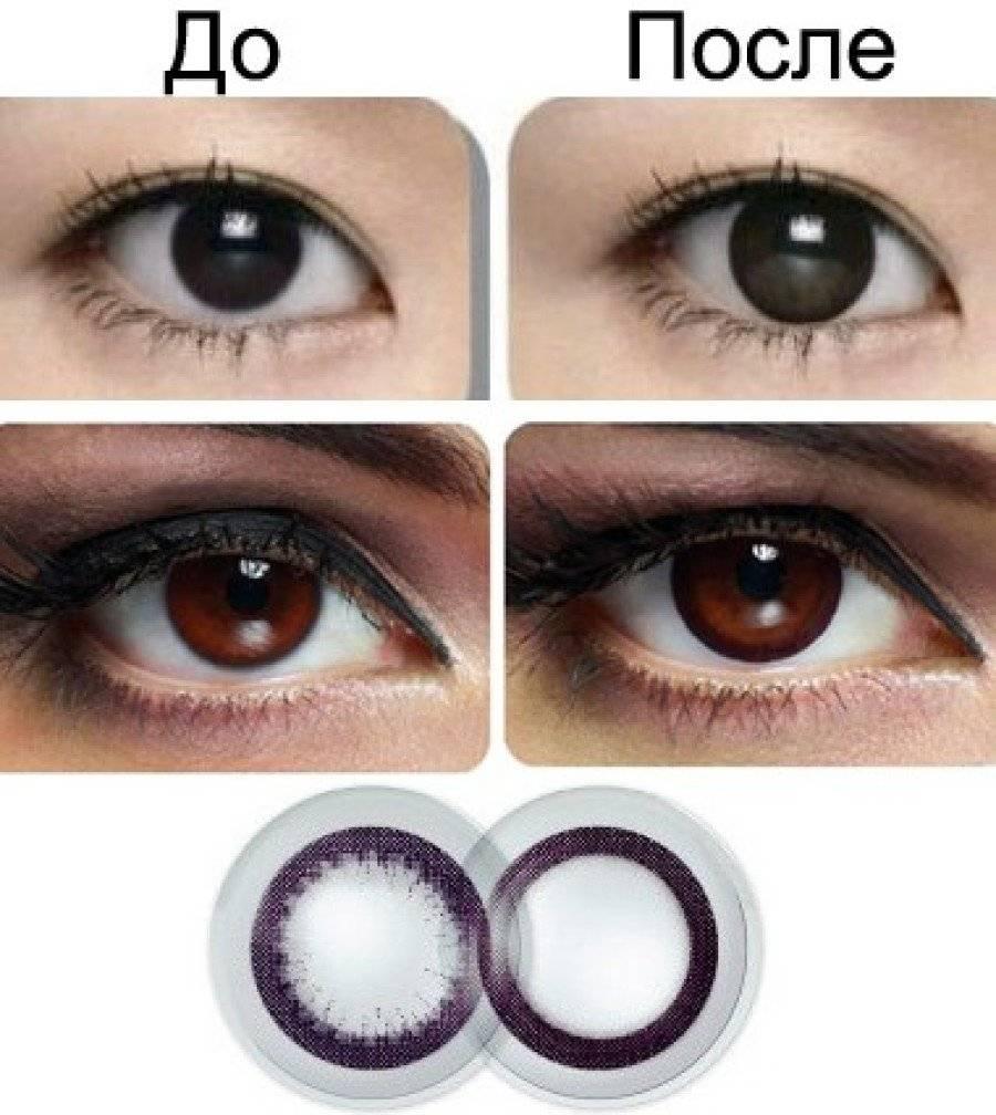 Хотите узнать, как подобрать контактные линзы?