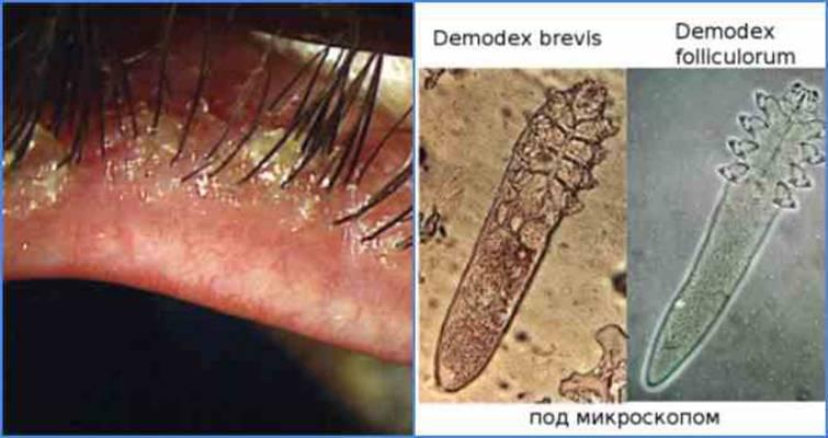 Ресничный клещ: симптомы и лечение, фото