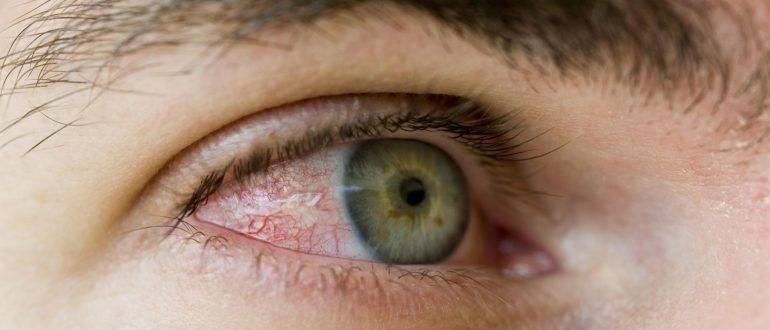 Глаза гноятся у взрослого при простуде