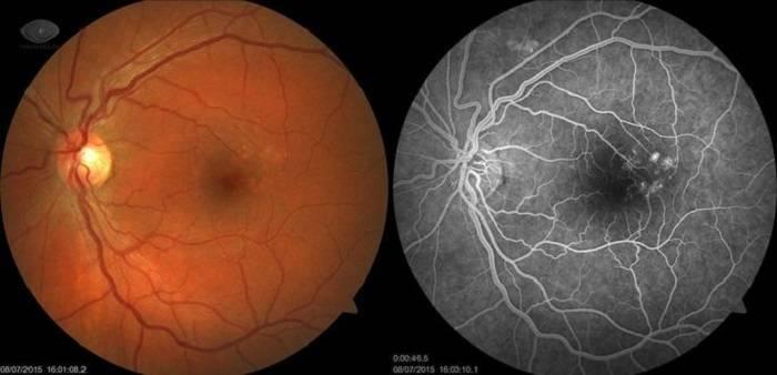 Что это такое макулодистрофия сетчатки глаза и лечение патологии