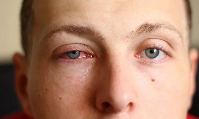 Болит глазное яблоко внутри: причины, что делать oculistic.ru болит глазное яблоко внутри: причины, что делать
