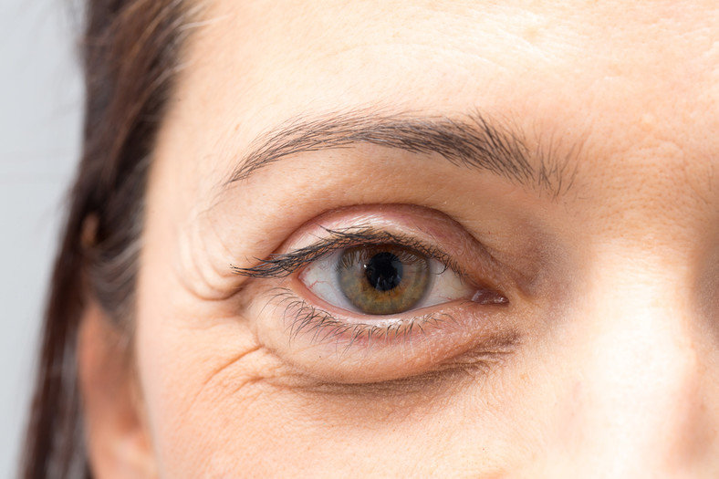 Почему вокруг глаз темные круги у женщин. как лечить черные круги под глазами