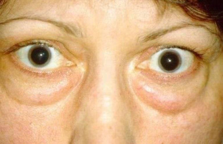 Экзофтальм – патология, требующая комплексного лечения