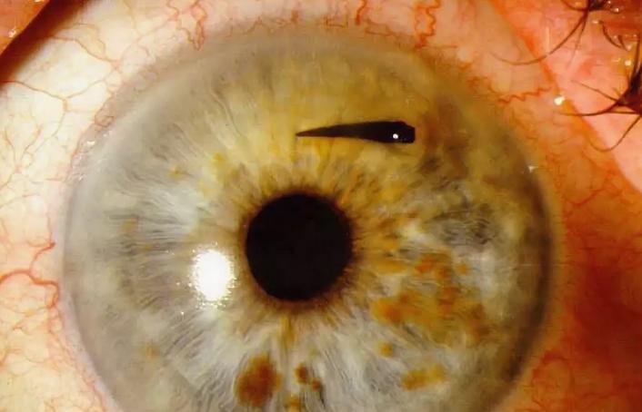 Ожог глаз от репейного масла - первая помощь