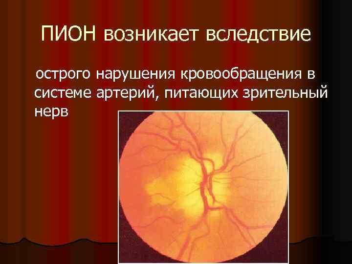 Ишемическая нейропатия зрительного нерва: причины, симптомы, диагностика, лечение, профилактика