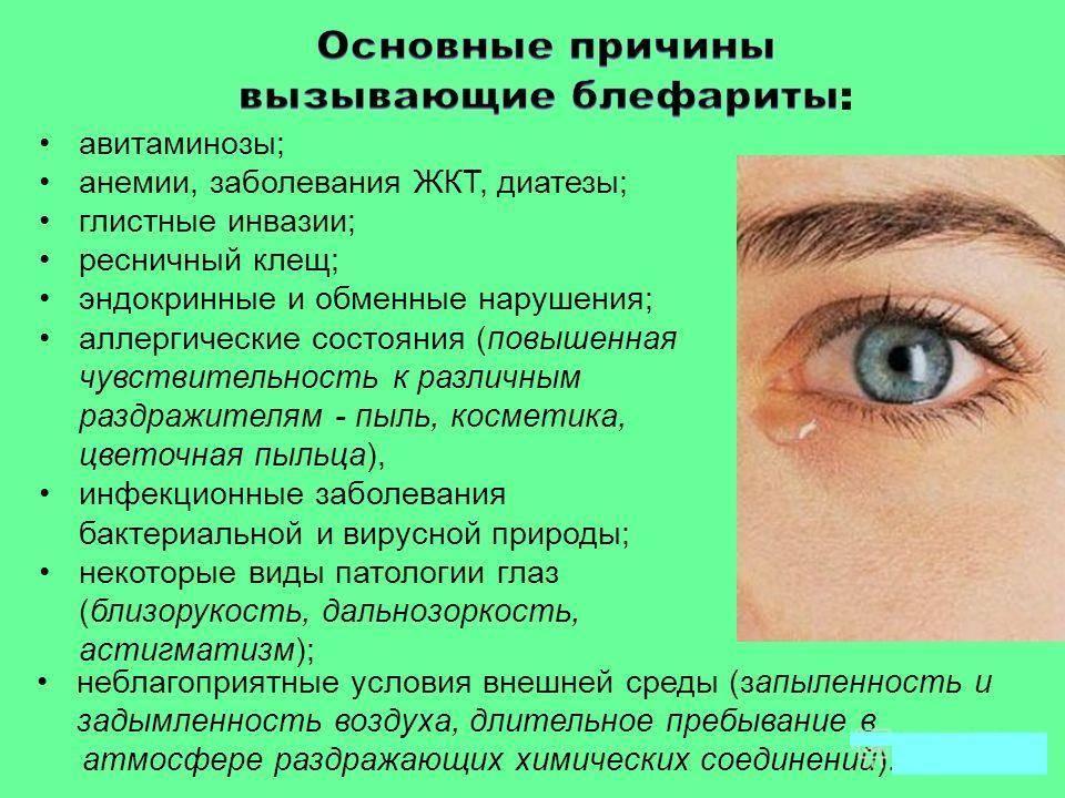 Блефарит – симптомы, виды, лечение