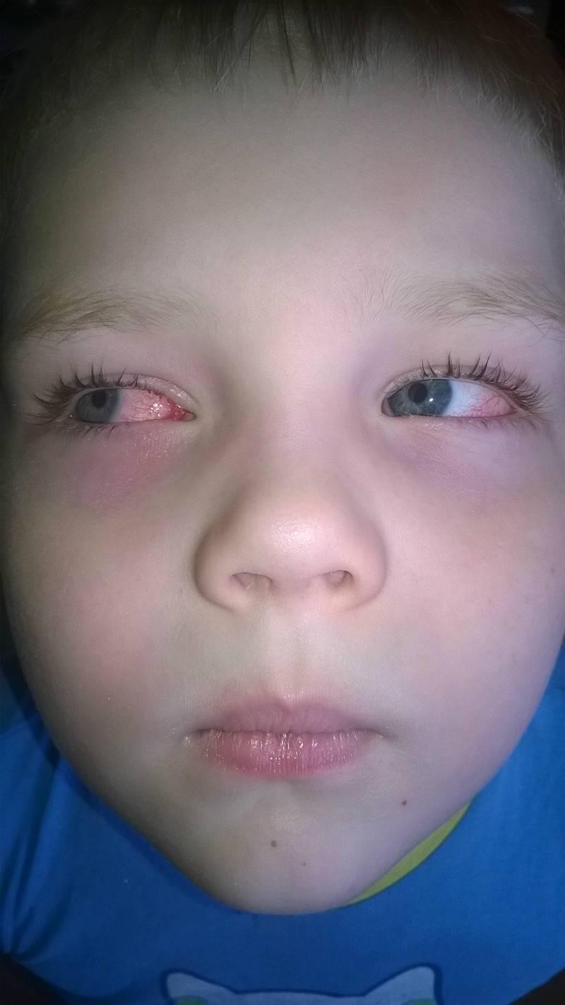 Лопнул сосуд в глазу у ребенка - причины, особенности у грудничков