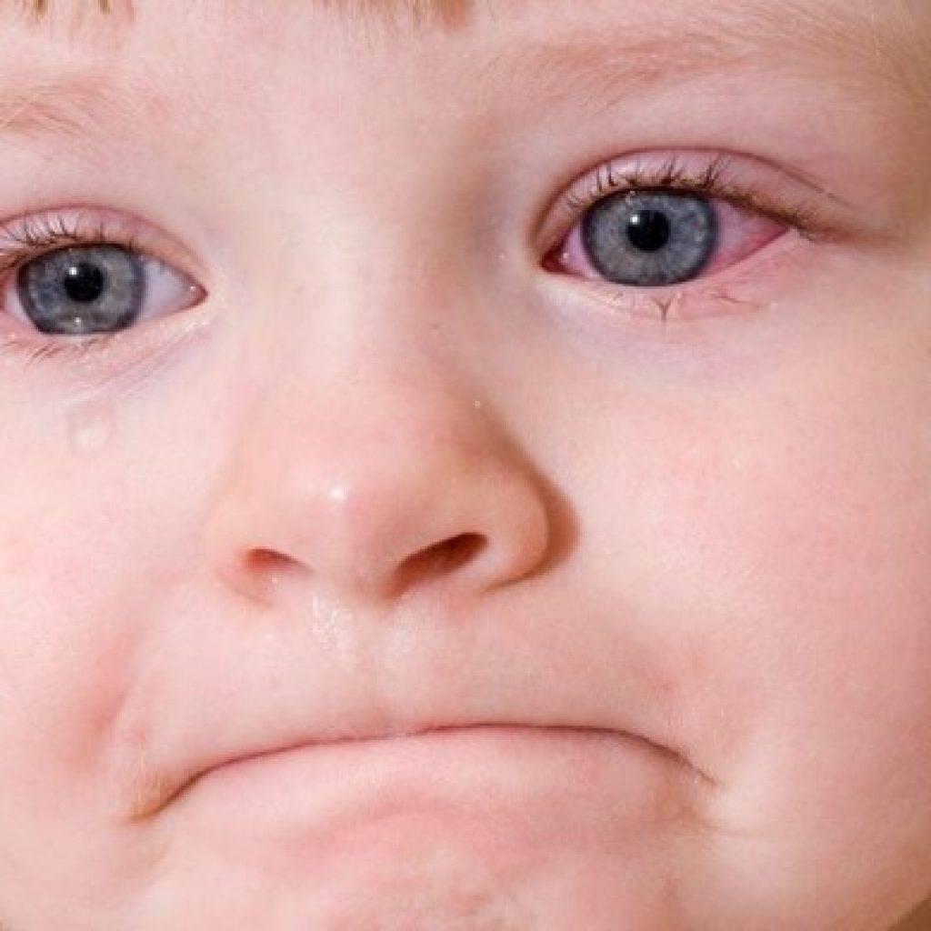 Ребенок часто моргает глазами: причины, симптомы и лечение