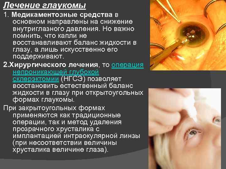 Лазерная коррекция глаукомы: симптомы, диагностика, методы лечения